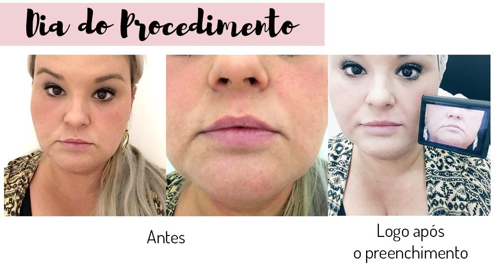 preenchimento labial com acido hialuronico - grandes mulheres 1