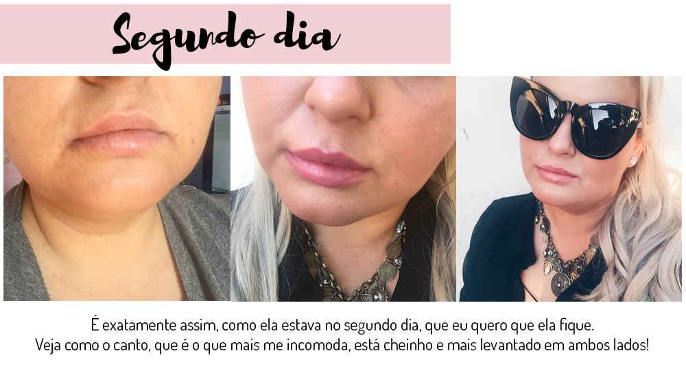 preenchimento labial com acido hialuronico - grandes mulheres 2