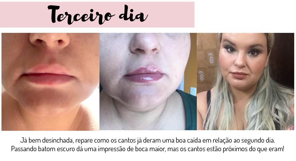 preenchimento labial com acido hialuronico - grandes mulheres 3