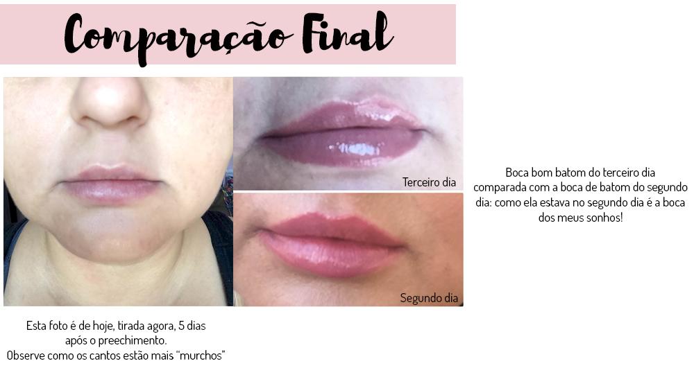 preenchimento labial com acido hialuronico - grandes mulheres 4