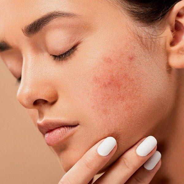 Saiba o que pode causar problemas em sua pele